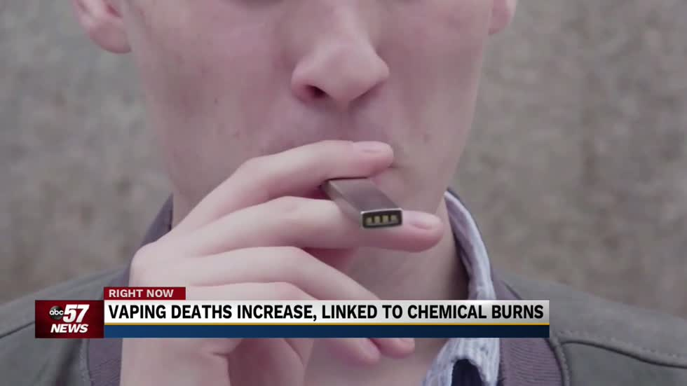 Researchers say vaping-related illnesses may be linked to chemical burns