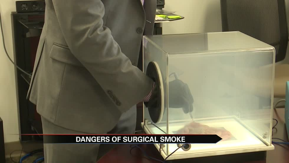 Stryker technology demonstrates dangers of surgical smoke