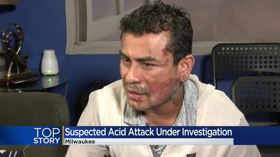 Man says acid attacker near 13th and Cleveland accused him of invading US