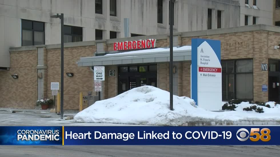 Hospitalized COVID-19 patients with severe illness more likely to have organ damage