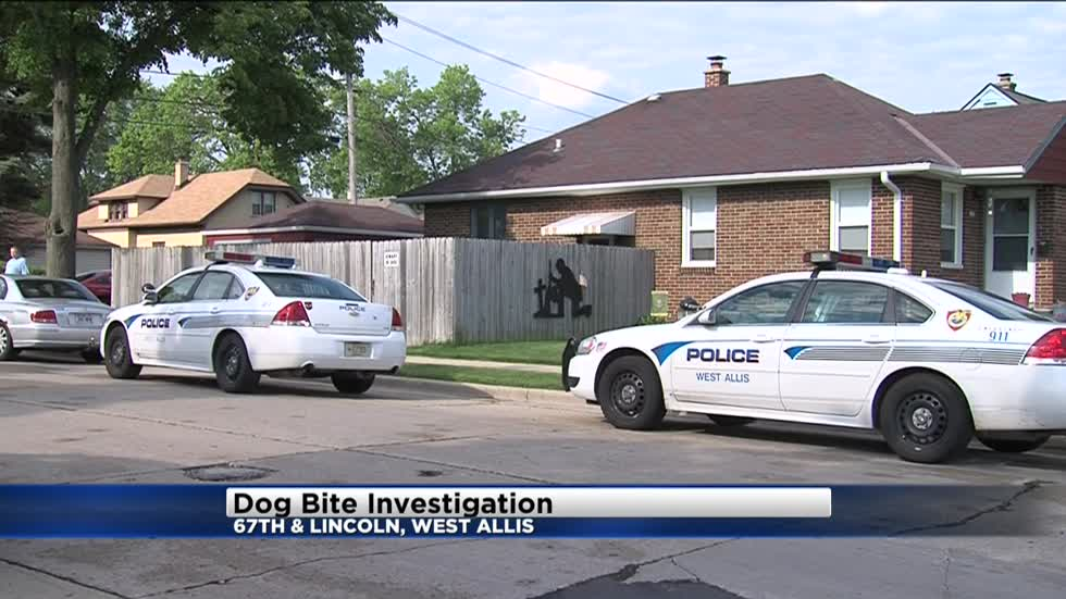 Man bitten defending his dog from two other dogs in West Allis