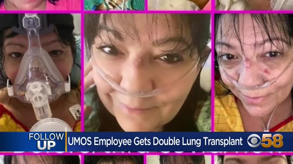 Beloved Milwaukee UMOS member undergoes successful lung transplant