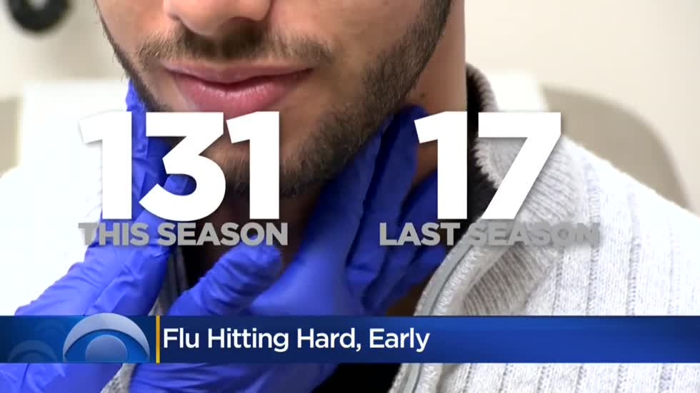 Milwaukee Health Department urges residents to get flu shot as hospitalizations rise