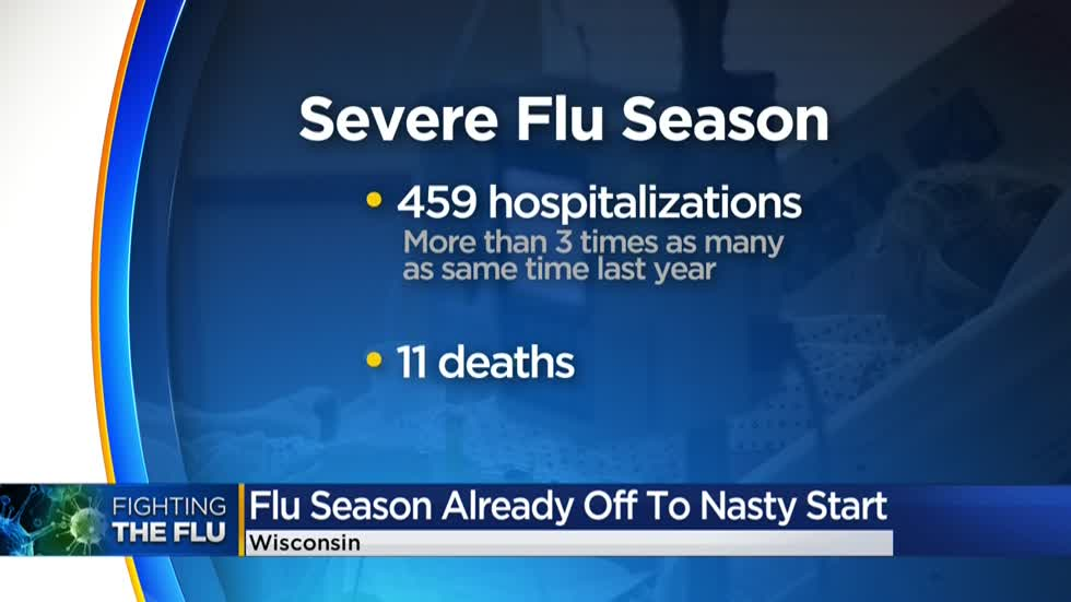 """It's a tough year:"" Doctors, officials battle spike in flu cases in Wisconsin"