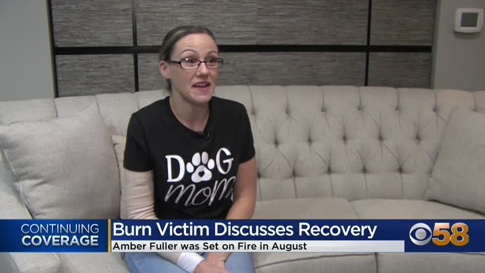 Waukesha woman set on fire shares her recovery story
