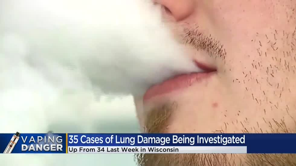 35 cases of lung damage linked to vaping being investigated in Wisconsin, up from 34 last week
